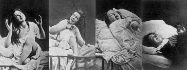 Women with hysteria under the effects of hypnosis.